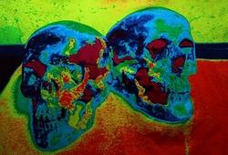 Zwei Toten Kopfe
